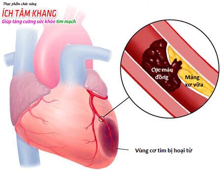 Tắc nghẽn động mạch vành do cục máu đông là nguyên nhân chính gây nhồi máu cơ tim cấp