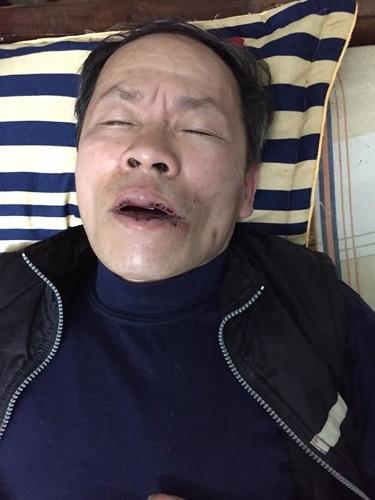 truongdung_bi_hanhhung