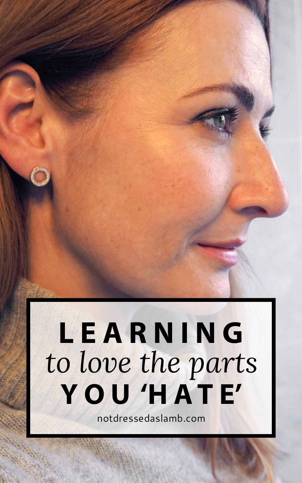 """Learning to Love the Parts You Hate: A Lesson in self-love and finding ways to appreciate body parts society deems as """"unattractive"""""""