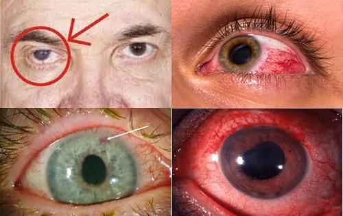 Obat Glaukoma Akut Di Apotik
