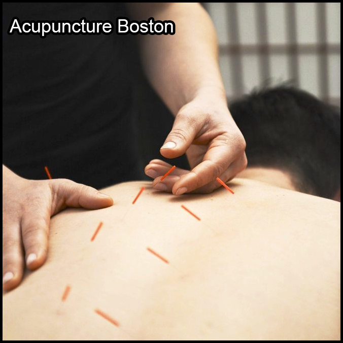 Acupuncture Boston