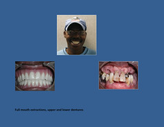 Full Mouth Extractions Dallas TX