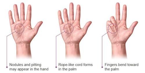 Contracture dupuytren, penyebab umum jari tangan kaku