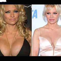 10 Celebs Who Got Their Breast Implants Removed