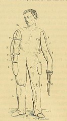 This image is taken from Page 161 of De l'alcoolisme des diverses formes du délire alcoolique et de leur traitement