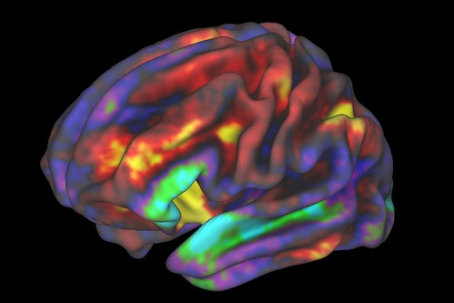 fMRI Image of Preteen Brain