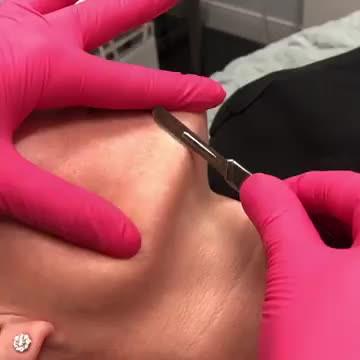 Dermaplaning at NOVA Plastic Surgery