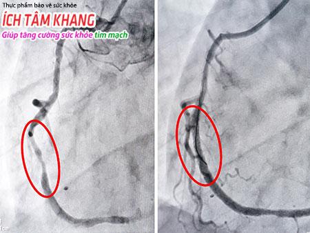 Chụp mạch vành có thể xem được rõ đoạn  mạch vành tắc, đoạn mạch vành bị dị dạng