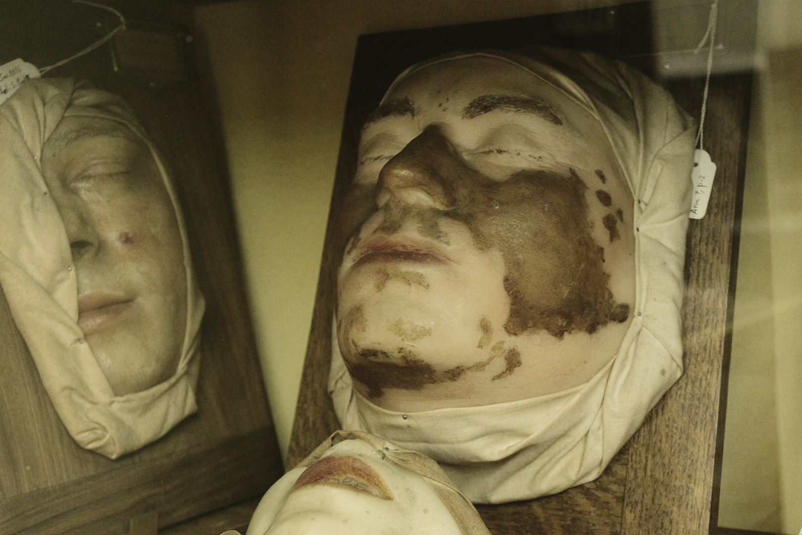 Wax model of indeterminate facial skin lesion, Museum of Portuguese Dermatology (Museu da Dermatologia Portuguesa).