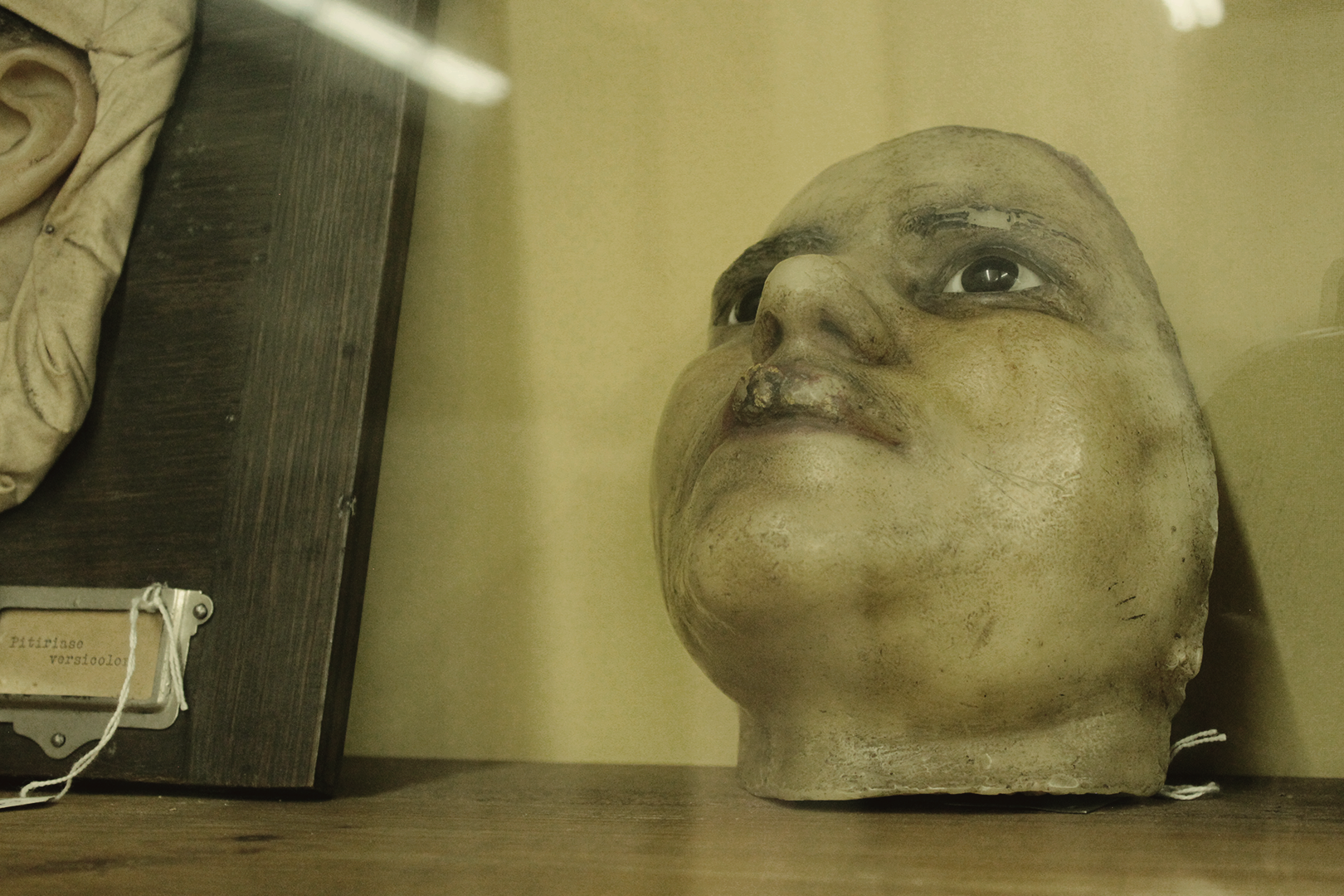 Wax model of mouth cancer, Museum of Portuguese Dermatology (Museu da Dermatologia Portuguesa).