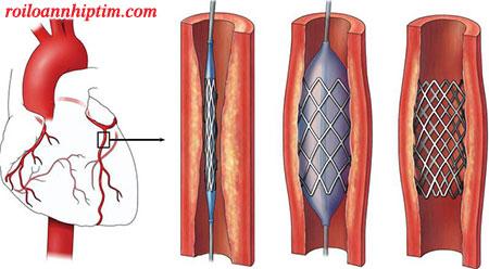Đặt stent mạch vành là phương pháp điều trị nhồi máu cơ tim hiệu quả