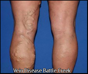 Vein Disease in Michigan