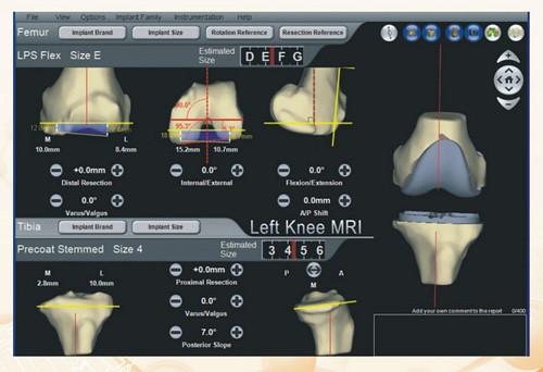 中部骨科權威林維群醫師專訪:人工關節五個關鍵,術後復健不再遙遙無期
