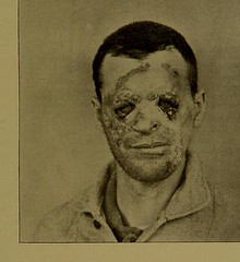 This image is taken from A case of pseudo-lupus vulgaris caused by a blastomyces