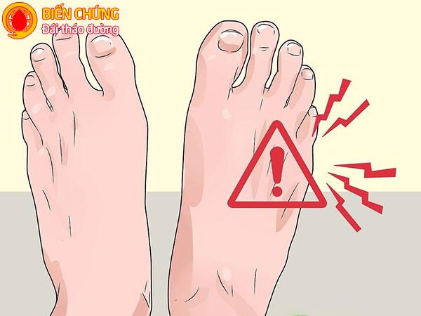 Cảm giác ngứa ran là dấu hiệu cảnh báo biến chứng bàn chân của bệnh tiểu đường