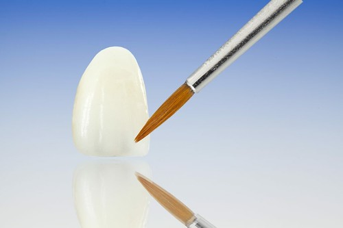 Porcelain Veneers Longmont | The Pros And Cons of Dental Veneers