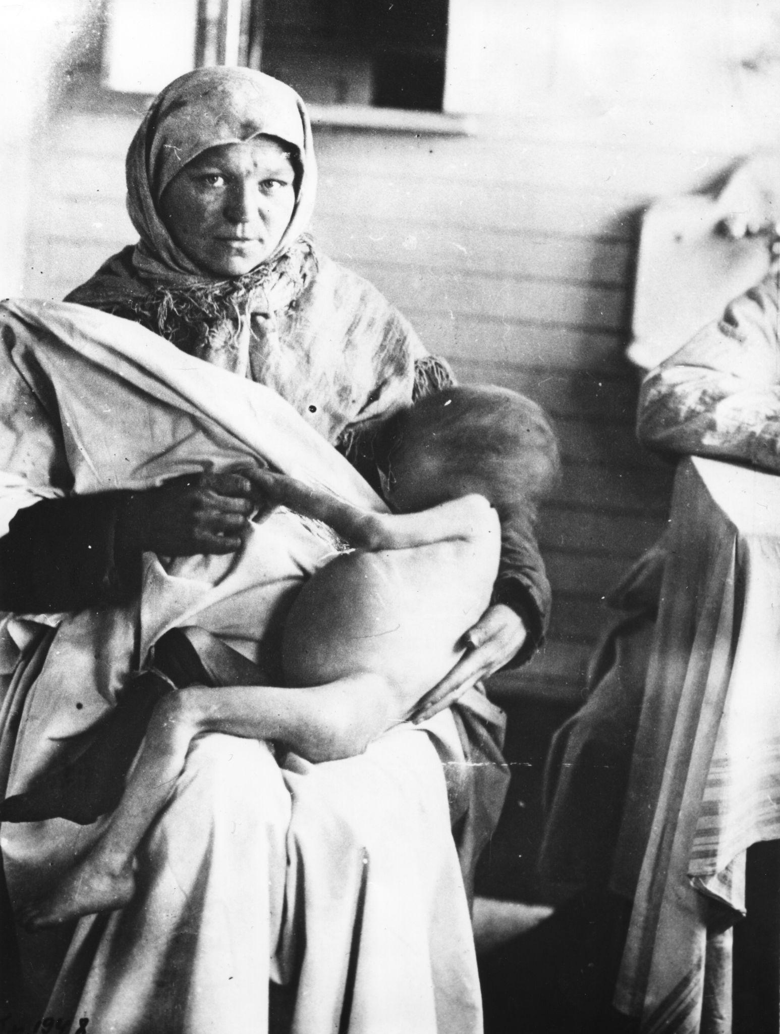 Умирающий от голода ребенок. Поволжье