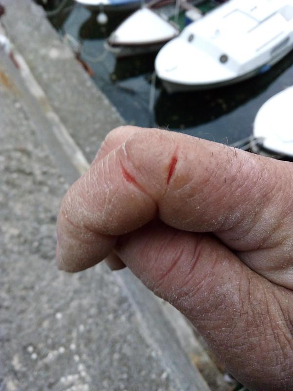 Fisherman's fingers