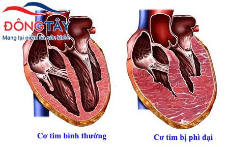 Suy tim độ 3 có nguy hiểm không? Cách nào để kéo dài sự sống?