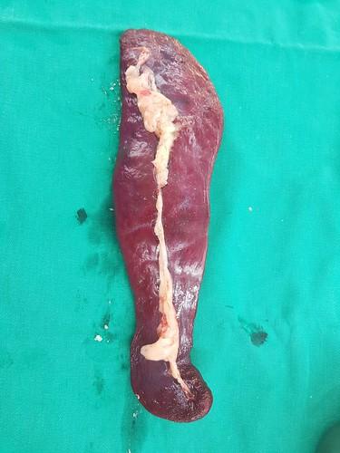 POLO的血管肉瘤2