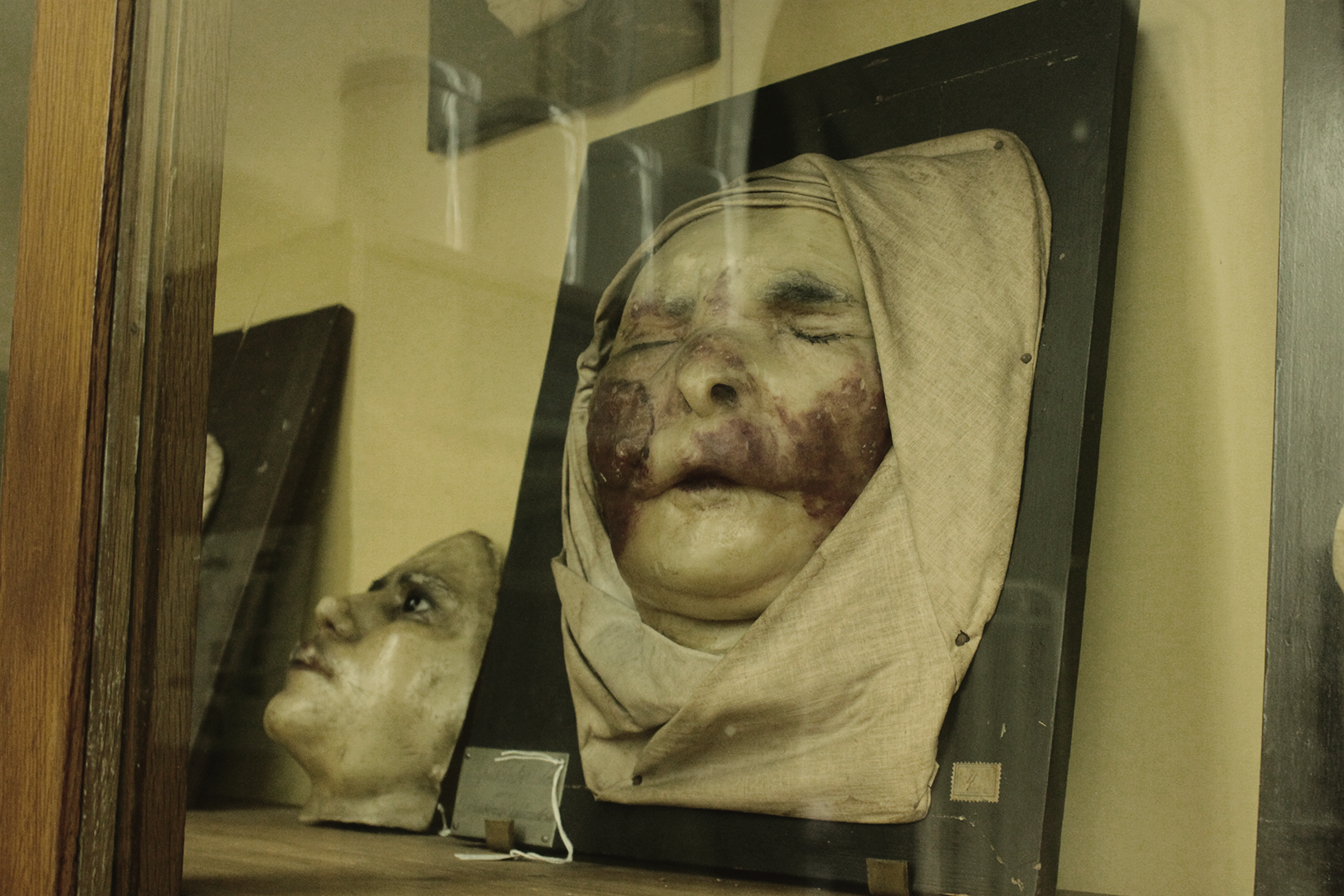 Wax model of lupus vulgaris lesions, Museum of Portuguese Dermatology (Museu da Dermatologia Portuguesa).