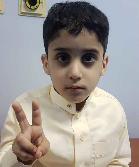 4821 A Handicapped Saudi Boy donates his stem Cells to save his sister's life 04