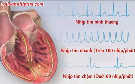 Rối loạn nhịp tim có chữa được không - giải đáp của chuyên gia