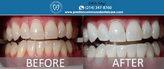 Zoom Whitening Dallas TX