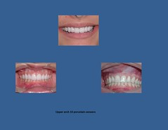 Porcelain Veneers Dallas TX