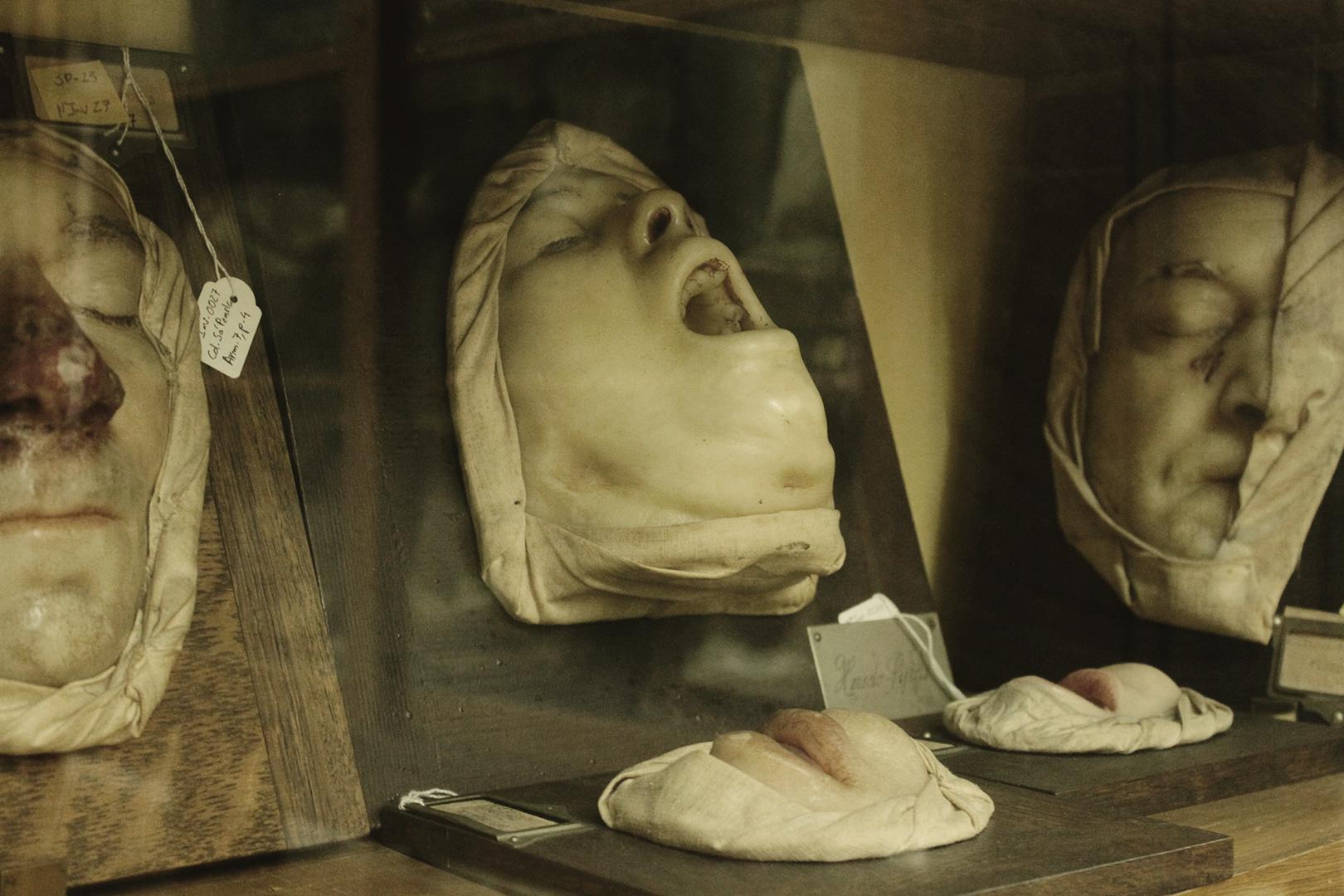 Wax model of congenital syphilis, Museum of Portuguese Dermatology (Museu da Dermatologia Portuguesa).