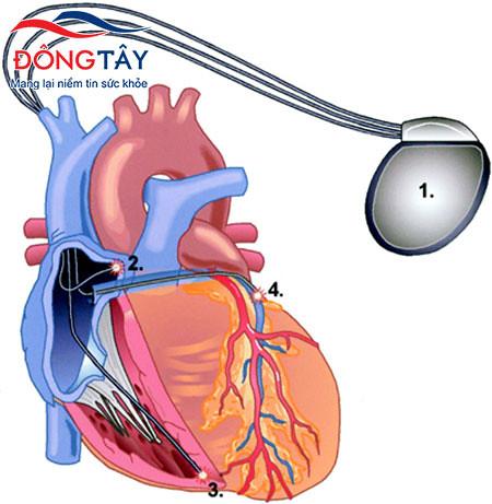Điều trị rối loạn nhịp tim nhanh và chậm: biện pháp nào hiệu quả?