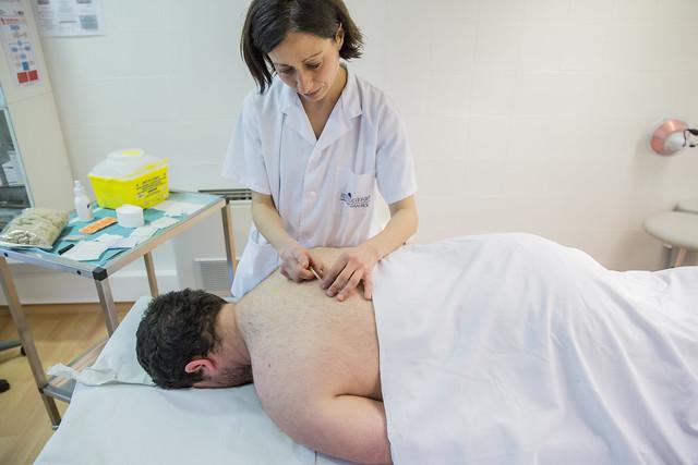 Infermera realitza una sessió d'acupuntura