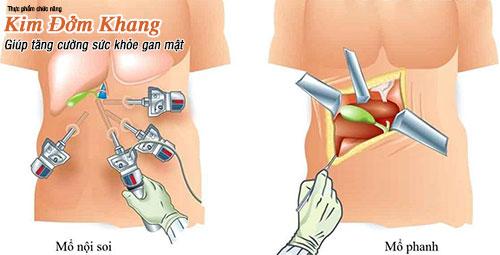 Cắt túi mật bằng 2 phương thức: mổ nội soi hoặc  mổ hở