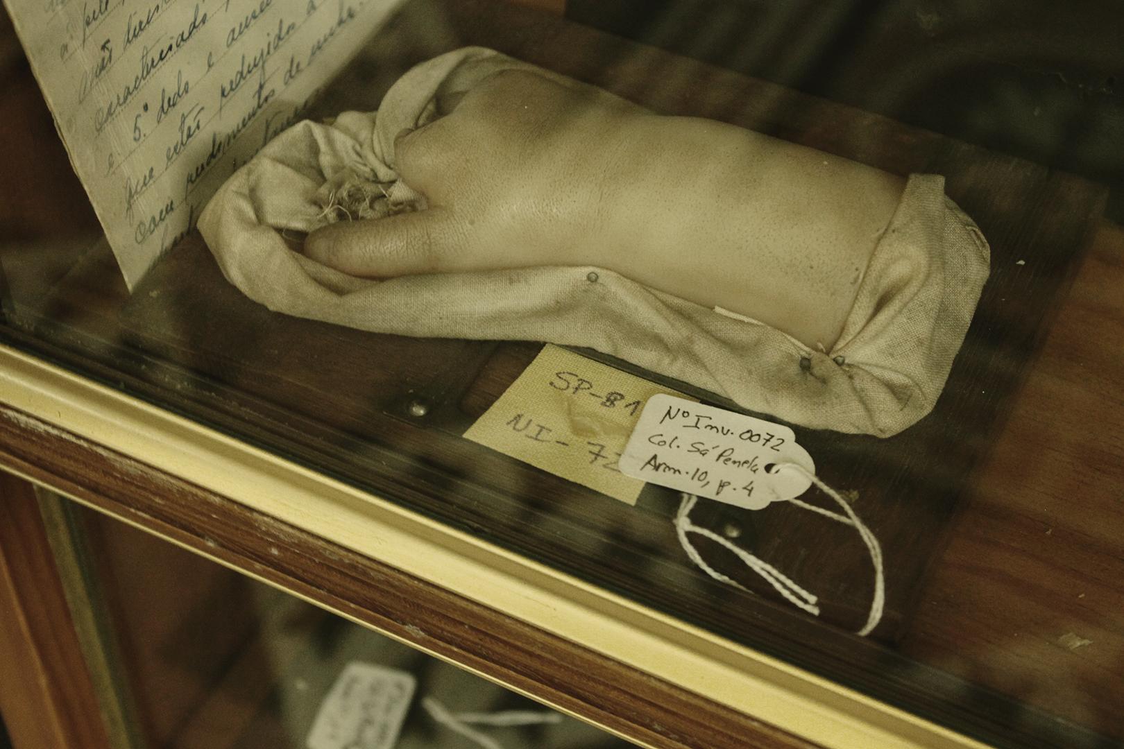 Wax model of brachydactyly, Museum of Portuguese Dermatology (Museu da Dermatologia Portuguesa).