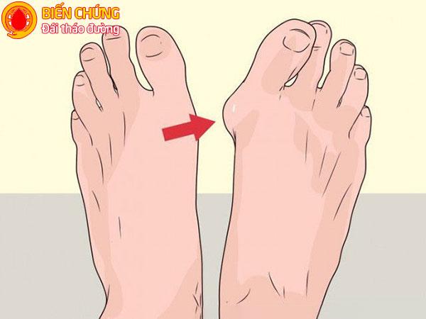 Dị dạng ở bàn chân, ngón chân làm tăng nguy cơ biến chứng loét chân tiểu đường