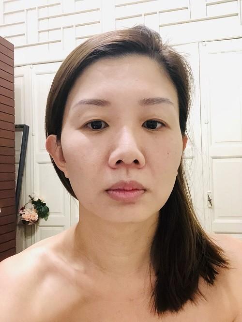 after Aldha facial