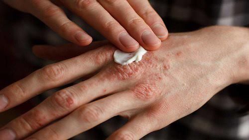 Penyakit Eksim – Penyebab, Gejala, dan Bahayanya