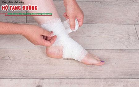 Loét chân tiểu đường có thể xuất phát từ những chất thương nhỏ.