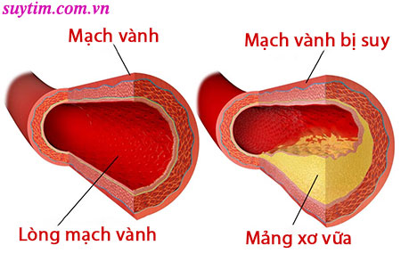 Suy mạch vành chủ yếu là do mảng xơ vữa bám dính vào thành mạch vành