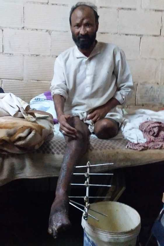 4841 Sarfaraz Nawaz - An expat worker who lost his legs in an accident pleads for help