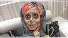 """La """"Angelina Jolie"""" iraní se somete a nueva cirugía, su foto impacta al mundo"""