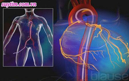 Chụp mạch vành qua da luồn một ống thông qua động mạch bẹn vào tới mạch vành tim