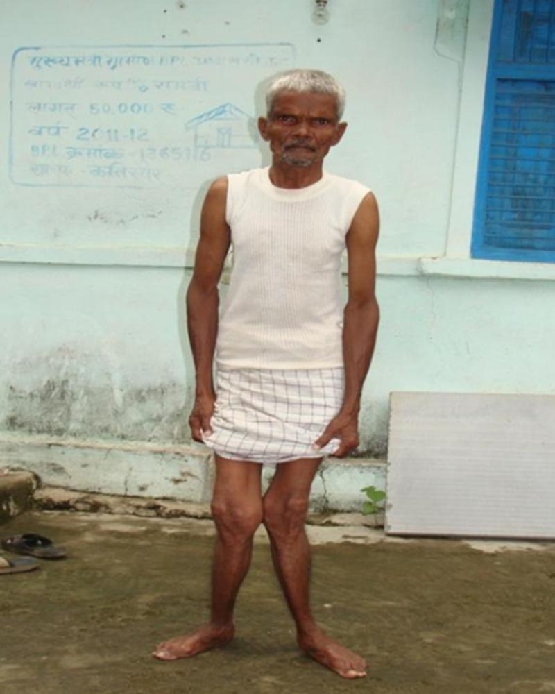 राजस्थान प्रदेश का पहला जेनू- वेल्गम सिंड्रोम केस (Fluoride, Epub 013)