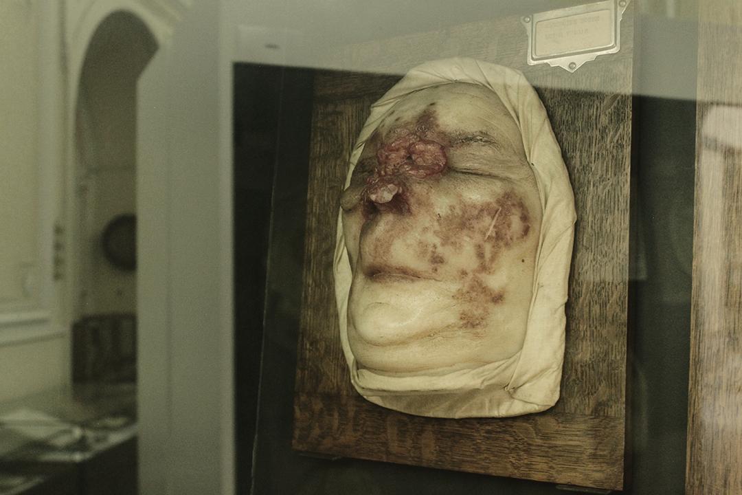 Wax model of facial skin lesions, Museum of Portuguese Dermatology (Museu da Dermatologia Portuguesa).