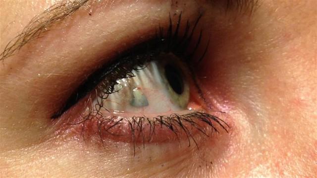 ferita agli occhi