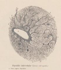 This image is taken from Breve estudio anatomo-patoloÃÂgico de la esclerosis hepaÃÂtica intercelular : teÃÂsis que para el exaÃÂmen profesional de medicina, cirugiÃÂa y obstetricia, presenta al jurado calificador