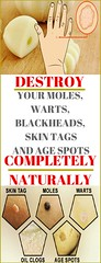 Destroy Your Moles Warts Blackheads Skin Tags And Age Spots Completely Naturally
