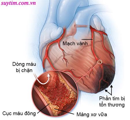 Cục máu đông và mảng xơ vữa là nguyên nhân gây nhồi máu cơ tim
