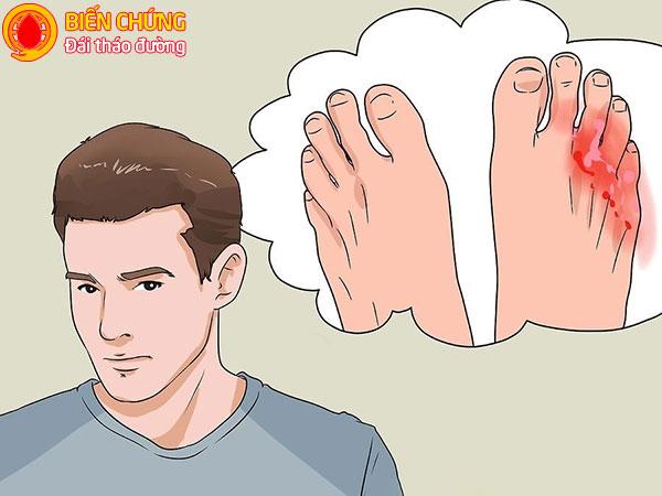Chuột rút, đau nhức bàn chân cảnh báo biến chứng bàn chân của bệnh tiểu đường