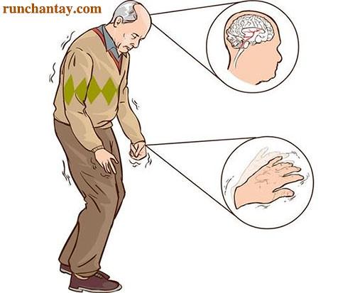 Kiểm soát triệu chứng giai đoạn tiến - thoái giúp hạn chế té ngã ở người bệnh Parkinson